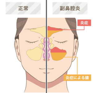 炎 治す ツボ 副 鼻腔